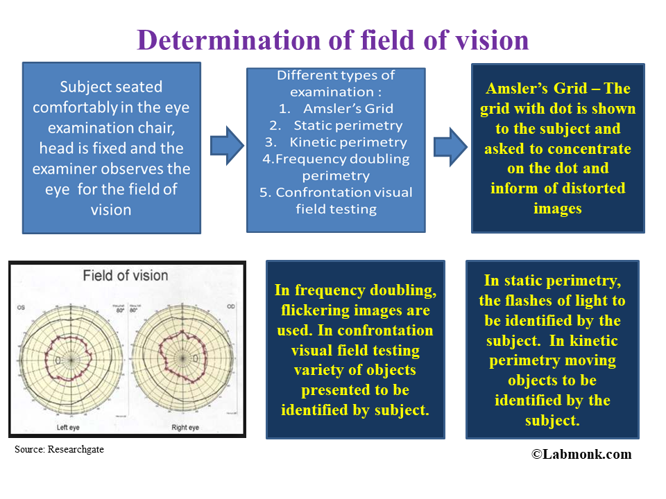 Determination of field of vision - Labmonk