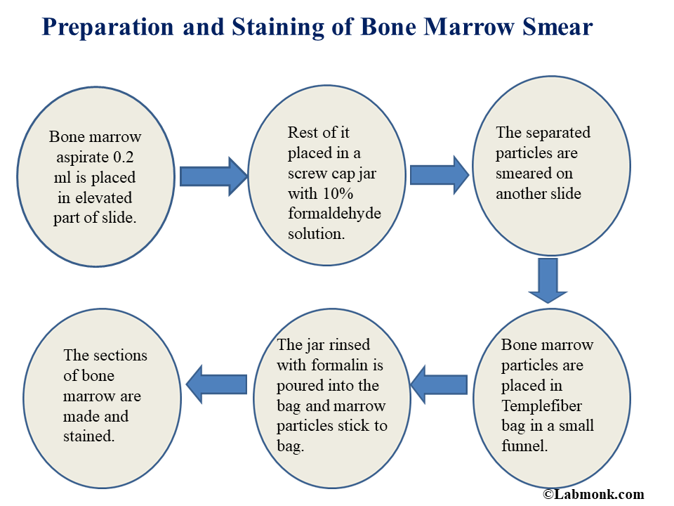 Preparation and Staining of Bone Marrow Smear - Labmonk